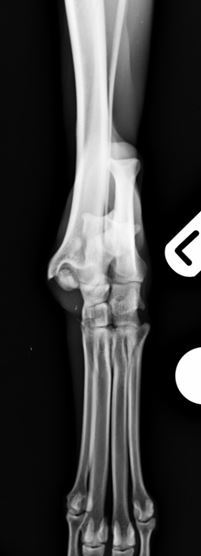 Figure 2. Comminuted talar and distal fibular fractures craniocaudal view